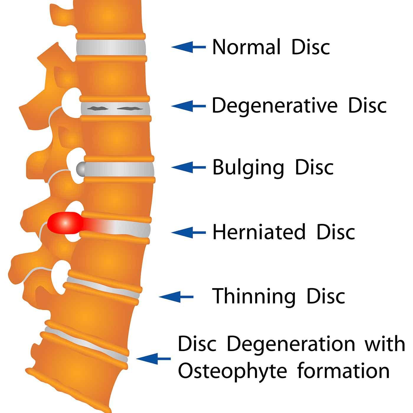 degenerative disc chiropractic services